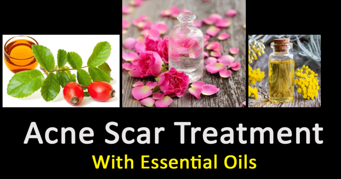 acne scar treatment by essential oils